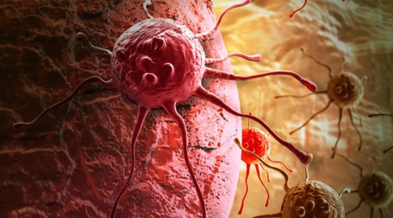 Benign-or-Malignant-Skin-and-Soft-Tissue-Tumors
