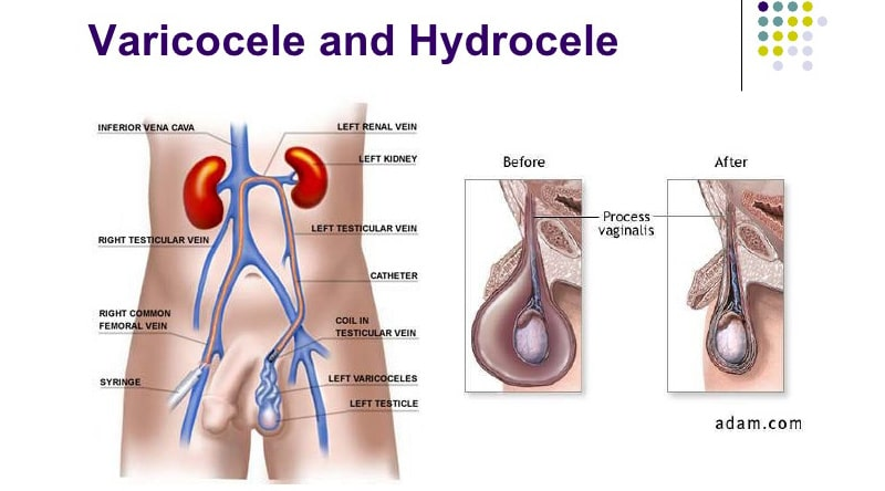 Hydrocele-and-Varicocele